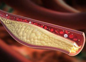 Xơ vữa động mạch là gì? làm sao để nhận biết