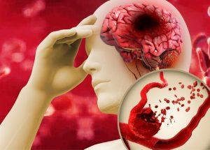 Giảm mỡ máu – Tăng sức khỏe