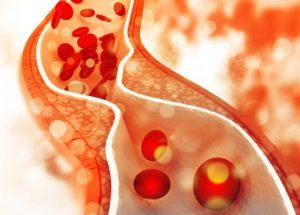 Nguyên nhân gây rối loạn lipid máu