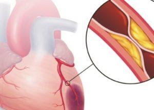 Xơ vữa động mạch: biến chứng sớm nhất của mỡ máu
