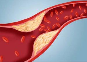 Rối loạn mỡ máu gây nên xơ vữa động mạch