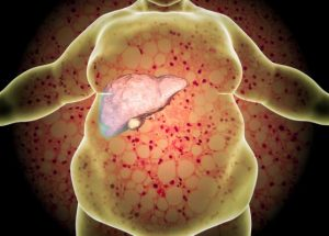 Gan nhiễm mỡ có mấy cấp độ và phương pháp điều trị trong từng trường hợp