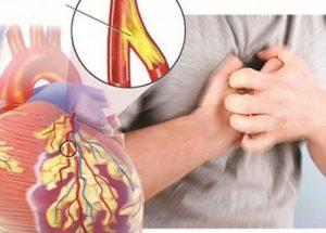 Bệnh xơ vữa động mạch vành: nguyên nhân, triệu chứng và hướng điều trị hiệu quả