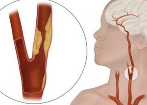 Bị xơ vữa động mạch cảnh nên điều trị ra sao?