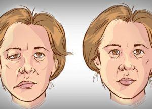 Bị xơ vữa mạch máu não, làm thế nào để ngăn ngừa tai biến?