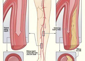 Xơ vữa động mạch 2 chi dưới: nguyên nhân, dấu hiệu, chẩn đoán và cách điều trị