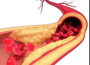 Rối loạn mỡ máu Triglyceride và những điều cần biết