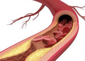 Huyết áp cao bị mỡ máu phải chăng rất nguy hiểm?