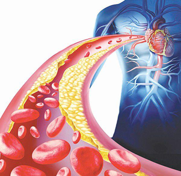 Giải đáp thắc mắc: Mắc bệnh mỡ máu có nguy hiểm không?
