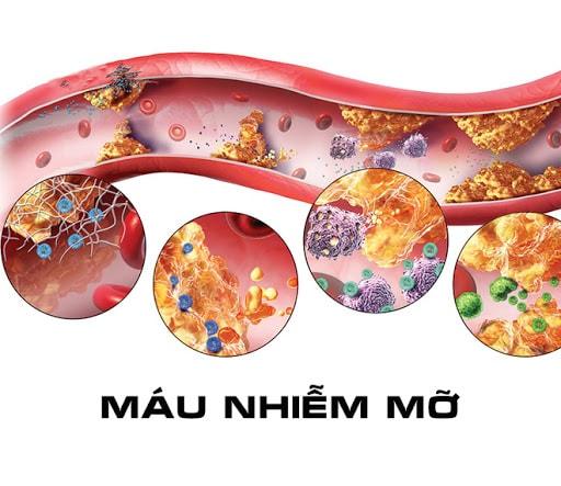 Máu nhiễm mỡ : nguyên nhân, triệu chứng và cách điều trị